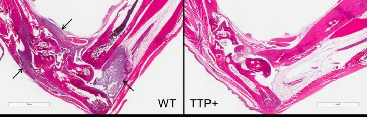 Stained sections of foot joints from wild-type (left) and TTP+ (right) mice show that when both were tested using a model of rheumatoid arthritis, the wild-type mouse experienced significant inflammation. Arrows indicate the presence of inflammatory immune cells in tissues lining the joints. The mouse with higher amounts of TTP did not exhibit inflammation. Image courtesy of NIEHS